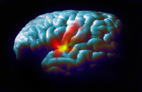 Maladie de Parkinson : le problème récurrent des ruptures de ...